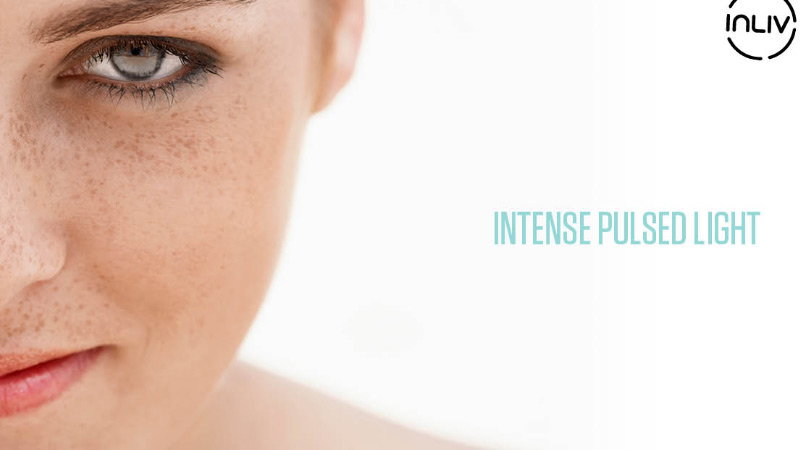 Get Rid of Sun Spots on Your Skin with IPL