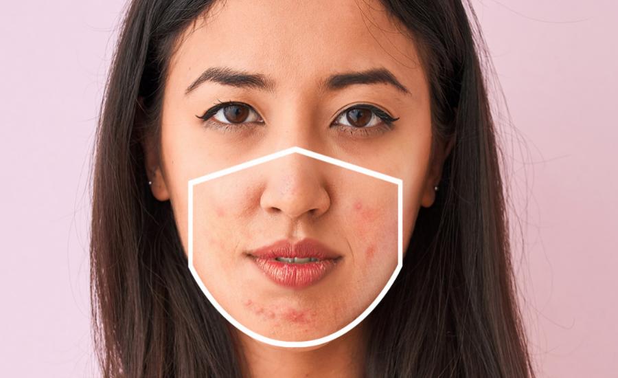 Got 'Maskne' (aka acne from wearing a face mask)?